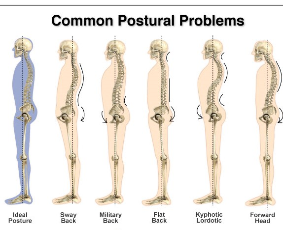 Back and posture Chiropractor Melbourne